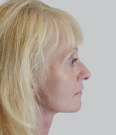 Facelift (rhytidectomy), post-op
