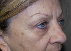 Upper eyelid lift (blepharoplasty), post-op